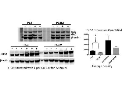 Rabbit Polyclonal GLS2 Antibody