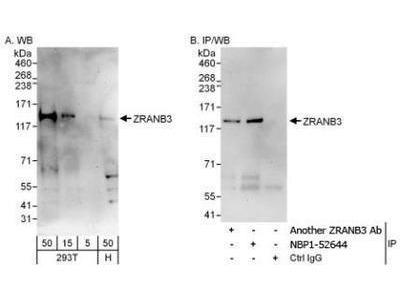Rabbit Polyclonal ZRANB3 Antibody