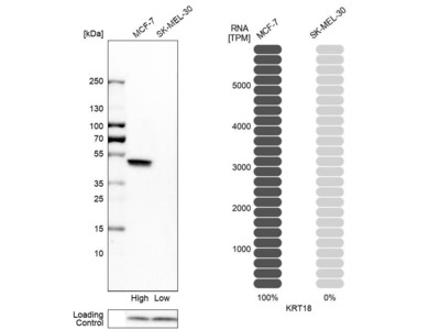 Anti-KRT18 Antibody