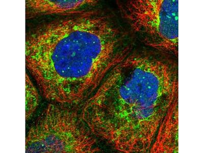 LYSMD2 Antibody