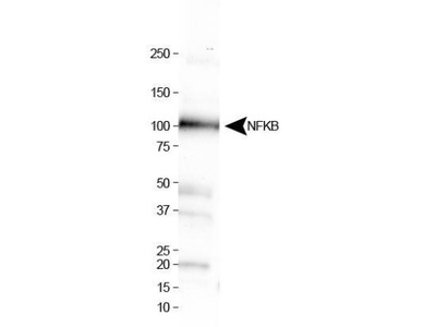 Rabbit Polyclonal NFkB1 / NFkB p105 Antibody