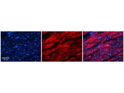 Rabbit Polyclonal Alanyl tRNA synthetase Antibody