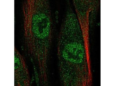 NAALADase-like 2 / NAALADL2 Antibody