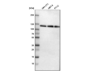 Ubiquitin-activating Enzyme / UBE1 Antibody