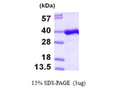 PITPNB Protein