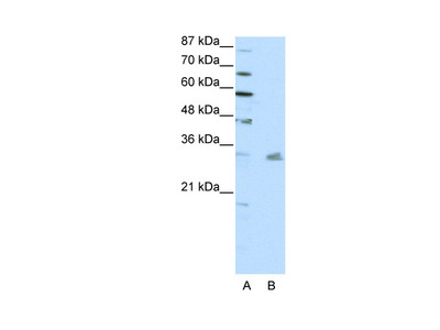 PITX3 antibody - N-terminal region (ARP38544_P050)