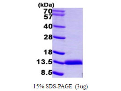 S100A11 Protein