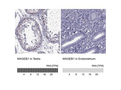 MAGEB1 Antibody