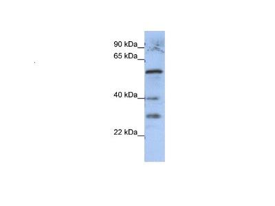 GADL1 Antibody