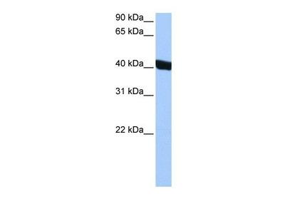 Chitinase 3-like 1 Antibody