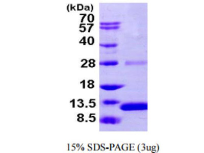S100A2 Recombinant Protein