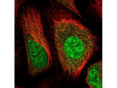 Huntingtin Antibody