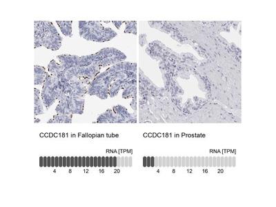 CCDC181 Antibody