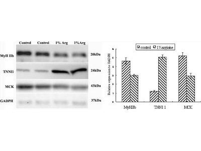 Troponin I Type 1 (slow skeletal) Antibody
