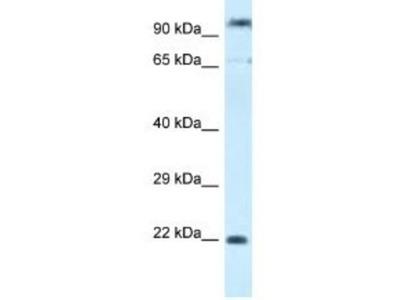 Rabbit Polyclonal POLR3GL Antibody