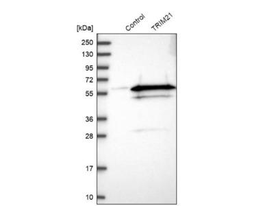 TRIM21/SSA1 Antibody