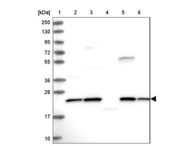 NPVF Antibody