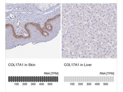 Collagen XVII Antibody