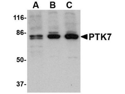 PTK7 / CCK4 Antibody