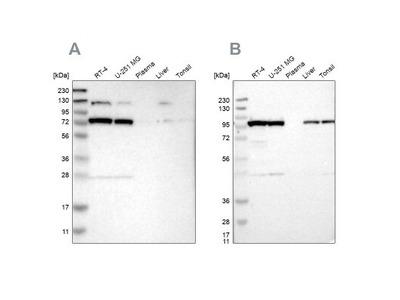 GARS Antibody