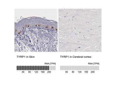 Anti-TYRP1 Antibody