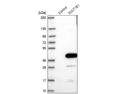 Cytosolic Sulfotransferase 1E1 / SULT1E1 Antibody