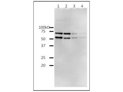 HIV1 Reverse Transcriptase Recombinant Protein