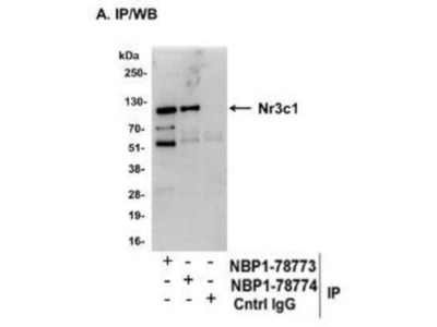 GR /NR3C1 Antibody