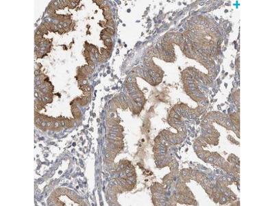 LAPTM4A Antibody