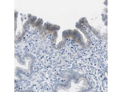 TauT / SLC6A6 Antibody