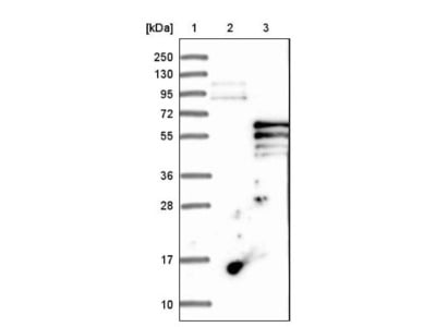 PI 4 Kinase type 2 beta Antibody