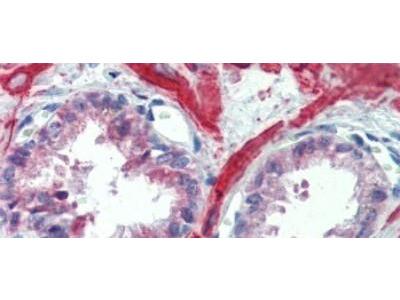 Rabbit Polyclonal IGFBP-4 Antibody