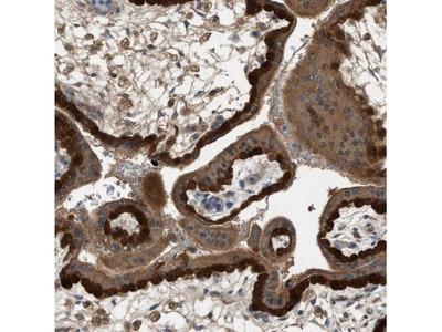 TPK1 Antibody