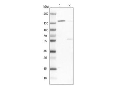 DPPII / QPP / DPP7 Antibody