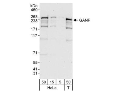 Rabbit Polyclonal MCM3AP Antibody