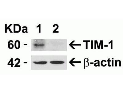 TIM-1 / KIM-1 / HAVCR Antibody