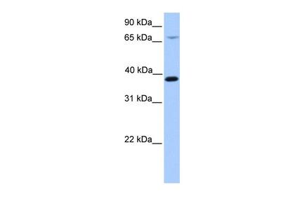 Rabbit Polyclonal HMBS Antibody