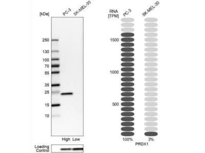 Peroxiredoxin 1 Antibody