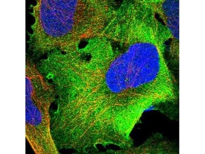TRM1 Antibody