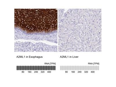 alpha 2-Macroglobulin-like 1 /A2ML1 Antibody