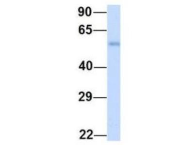 DAK Antibody