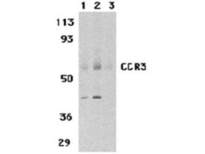 CCR3 Peptide