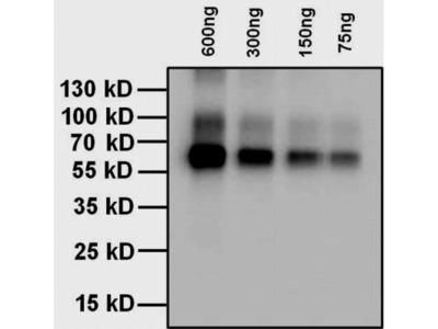 Thyroxine Antibody (T4YCH)