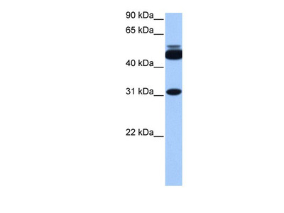 Rabbit Polyclonal CYLC2 Antibody
