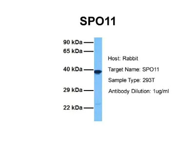 Rabbit Polyclonal SPO11 Antibody