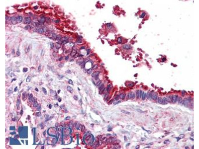 TUBB / Beta Tubulin Monoclonal Antibody