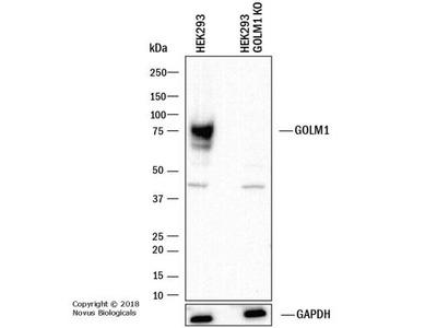 Rabbit Polyclonal GOLM1 Antibody