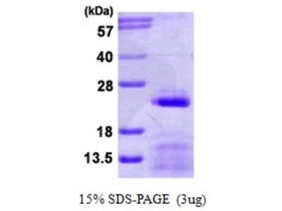 SNRPC Protein