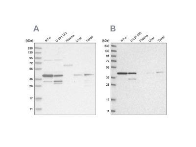 NIPP1 Antibody