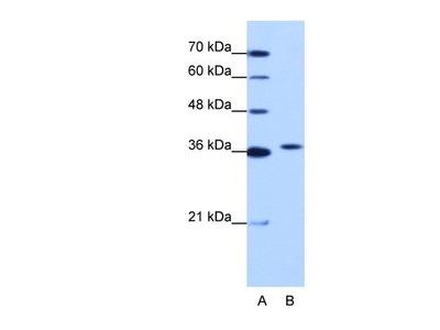 Exosome component 7 Antibody